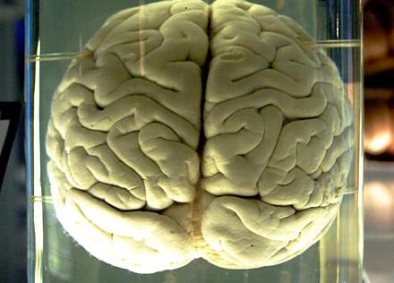 Obama Seeking to Boost Study of Human Brain